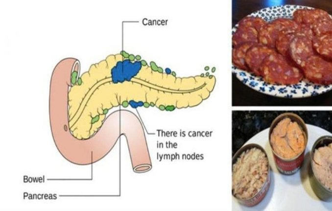 Foods Linked To Cancer You Should Never Eat Again