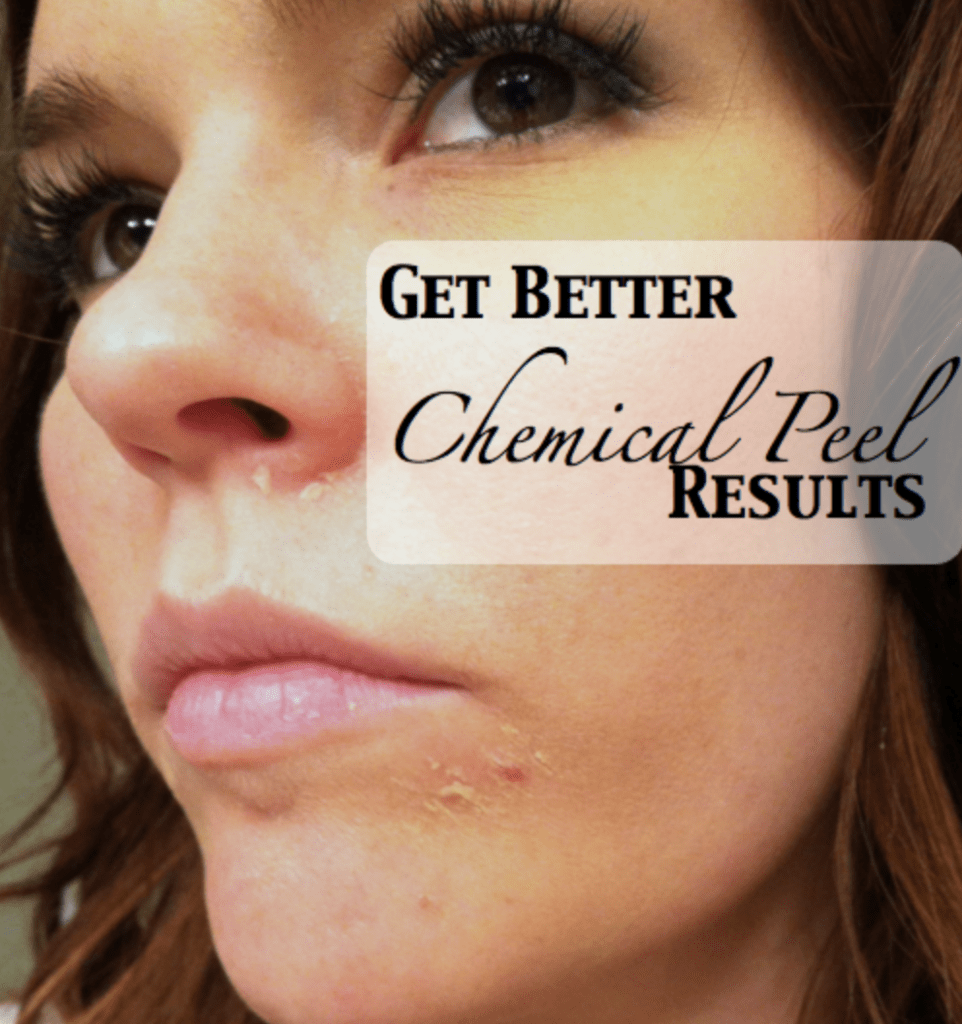 best chemical peel results