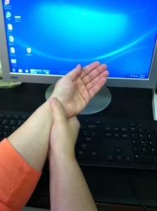 CTS, carpal tunnel, carpal tunnel syndrome, wrist pain