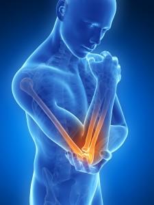 Tennis Elbow, elbow pain, elbow pain houston, houston elbow pain, houston tennis elbow, tennis elbow houston
