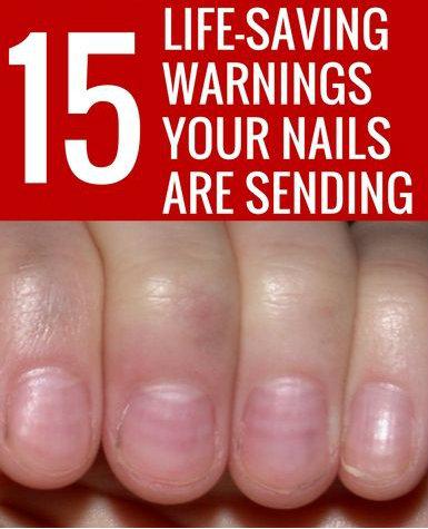 Life-saving warnings your nails are sending