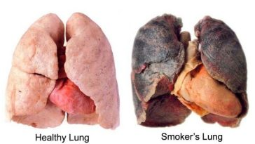 Body Before And After You Quit Smoking