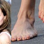 Ugly Looking Feet