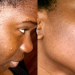 Effective Natural Remedy To Remove All Spots