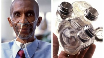 Image result for This African-American man survived for 151 days without a living heart in 2001