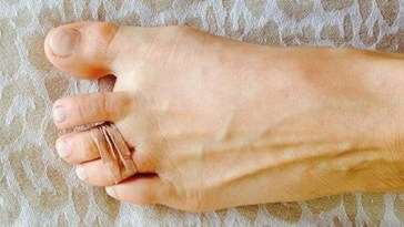Woman joins her 2 toes with rubber band