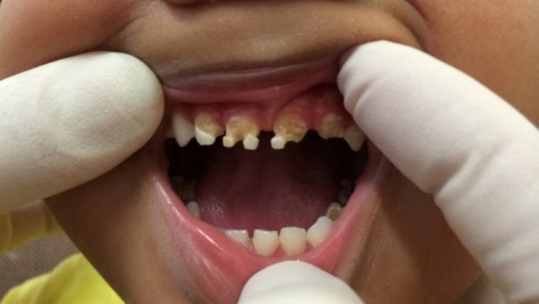 Parents Shocked By What Caused This Child's Massive Tooth Decay!