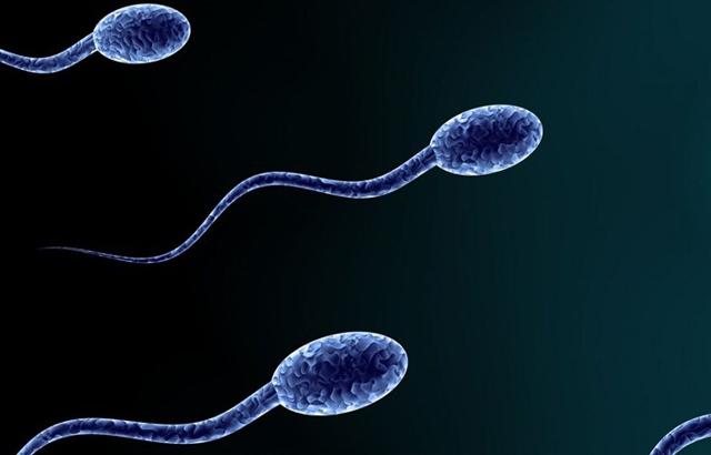 How to Cure Abnormal Sperm( Abnormal sperm morphology)