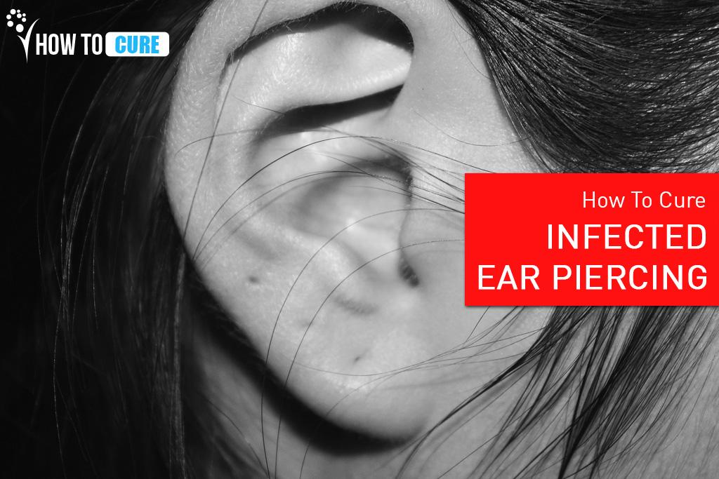 infected ear piercing