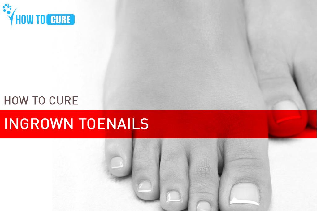 How to Treat an Ingrown Toenail - Home remedies for ingrown toenail ...