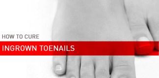 remedies for ingrown toe nails
