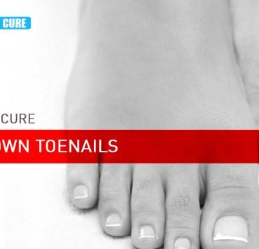 home remedies for ingrown toenail