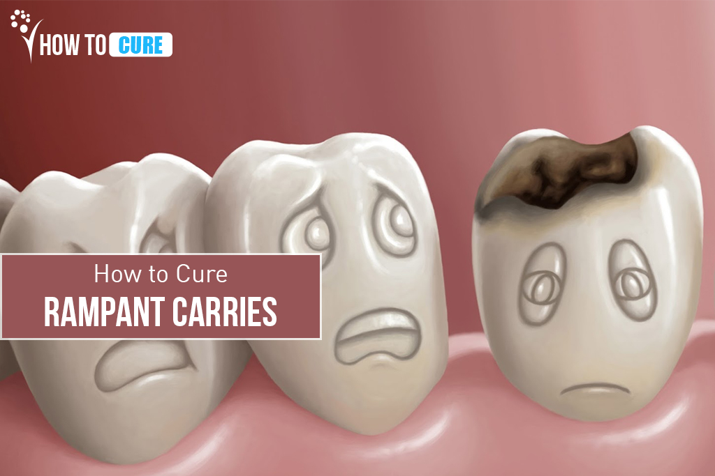 Rampant Caries Tooth Decay