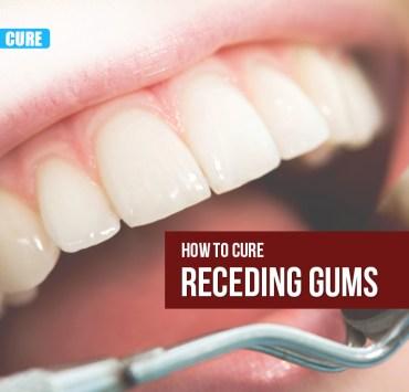 Cure Receding Gums