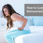 How to cure a Retroverted Uterus