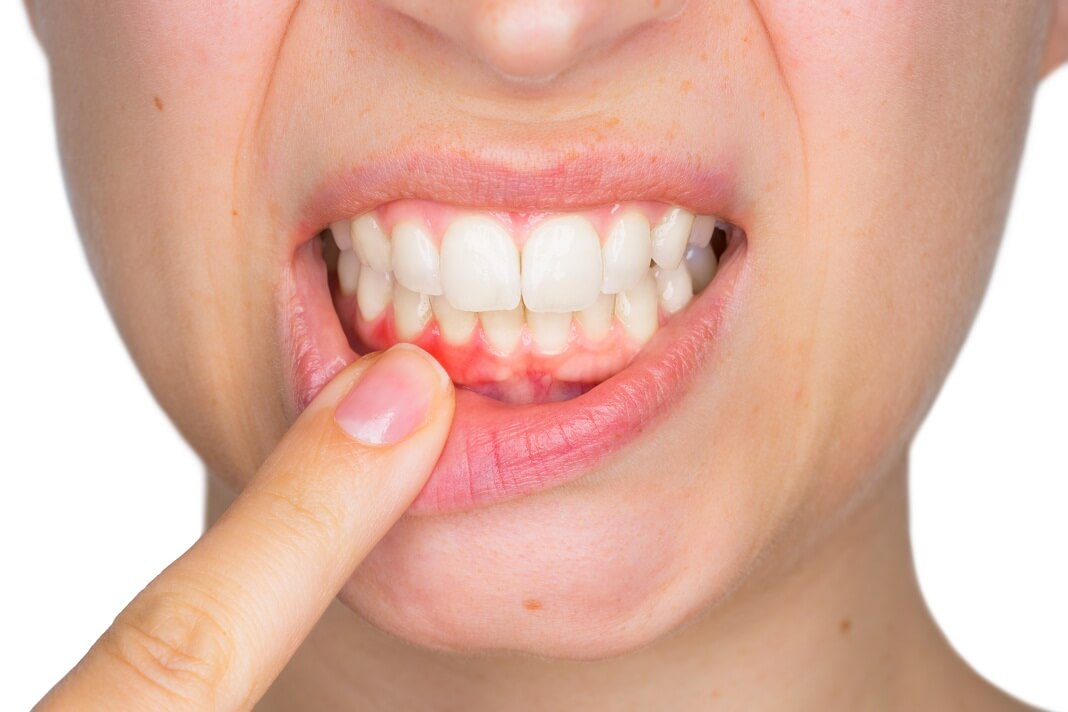 Effects of Pyorrhoea on gums