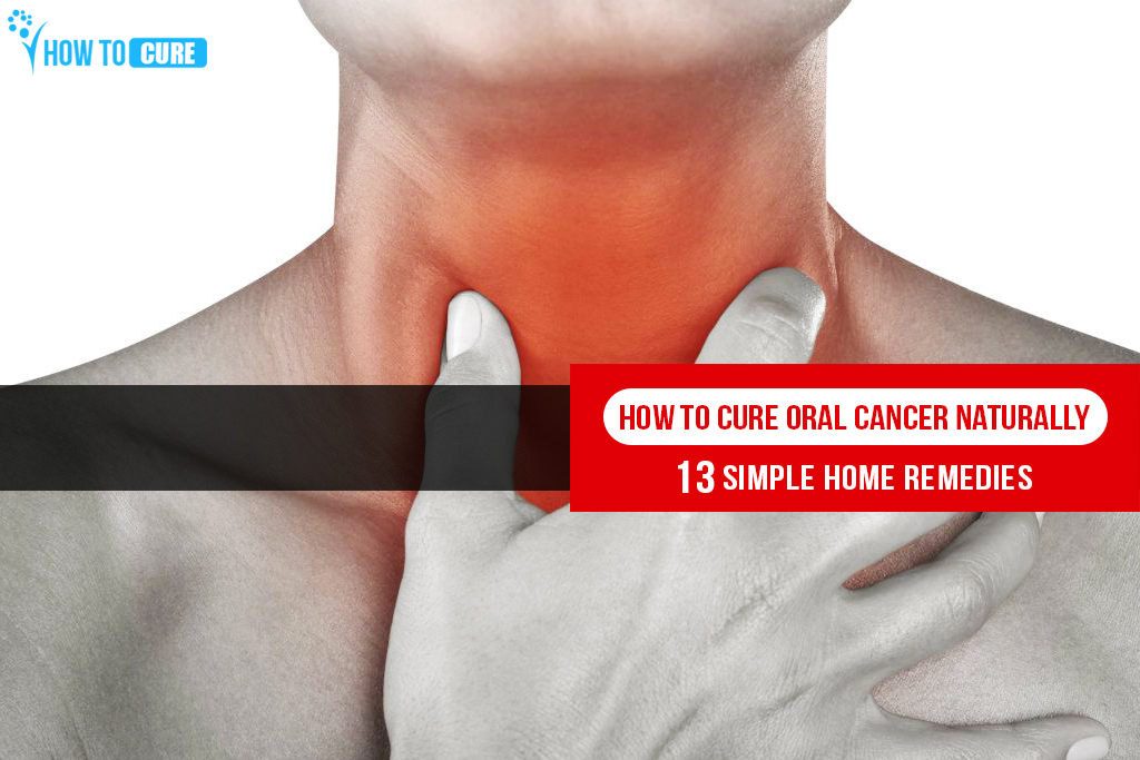 How to Cure Oral Cancer Naturally