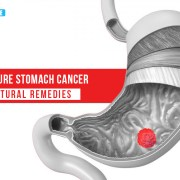 How to Cure Stomach Cancer