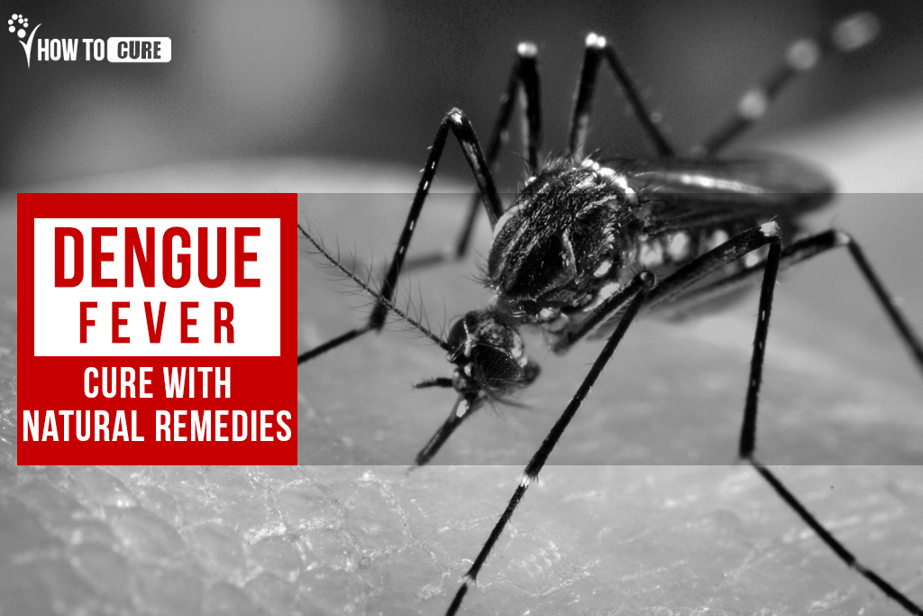 42_dengue-fever-cure-with-natural-remedies