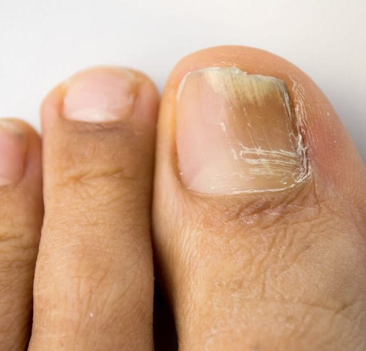 Home Remedies for Fungal Infection