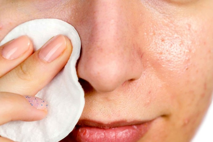 Tips to Get Rid of Blackheads!