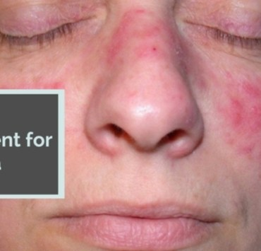 Home Treatment for Rosacea