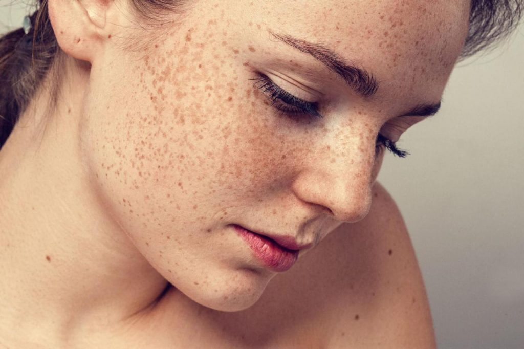natural remedies for hyperpigmentation on skin