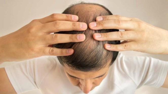 male hair loss reversible