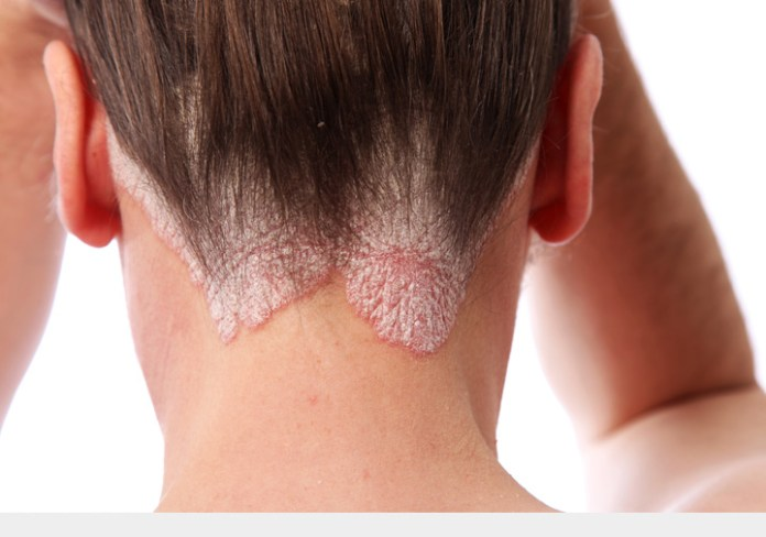 Red Palm Oil Benefits for Scalp Psoriasis
