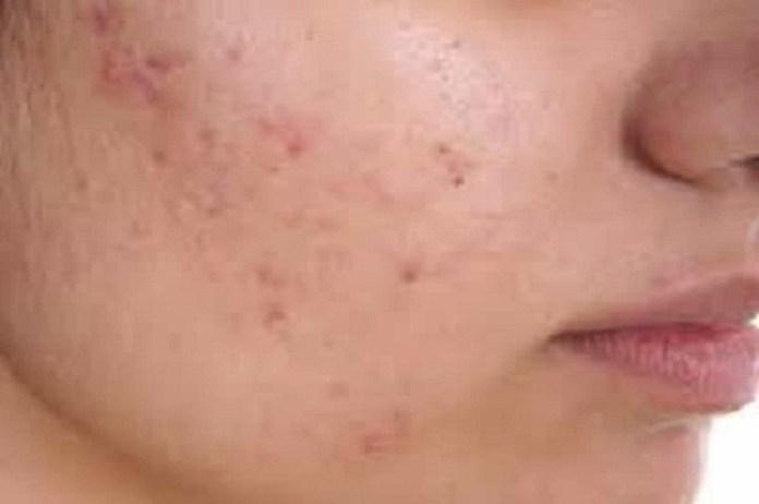 Safflower Oil for Acne