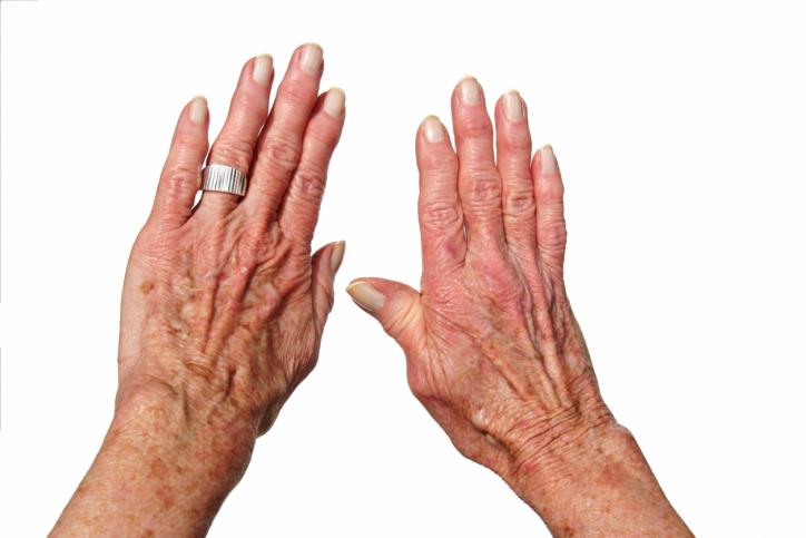 Skullcap benefits for arthritis