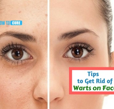 how to get rid of warts on face