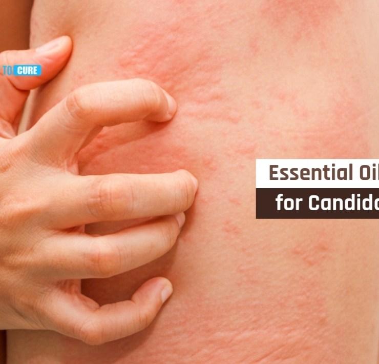essential oils for candida