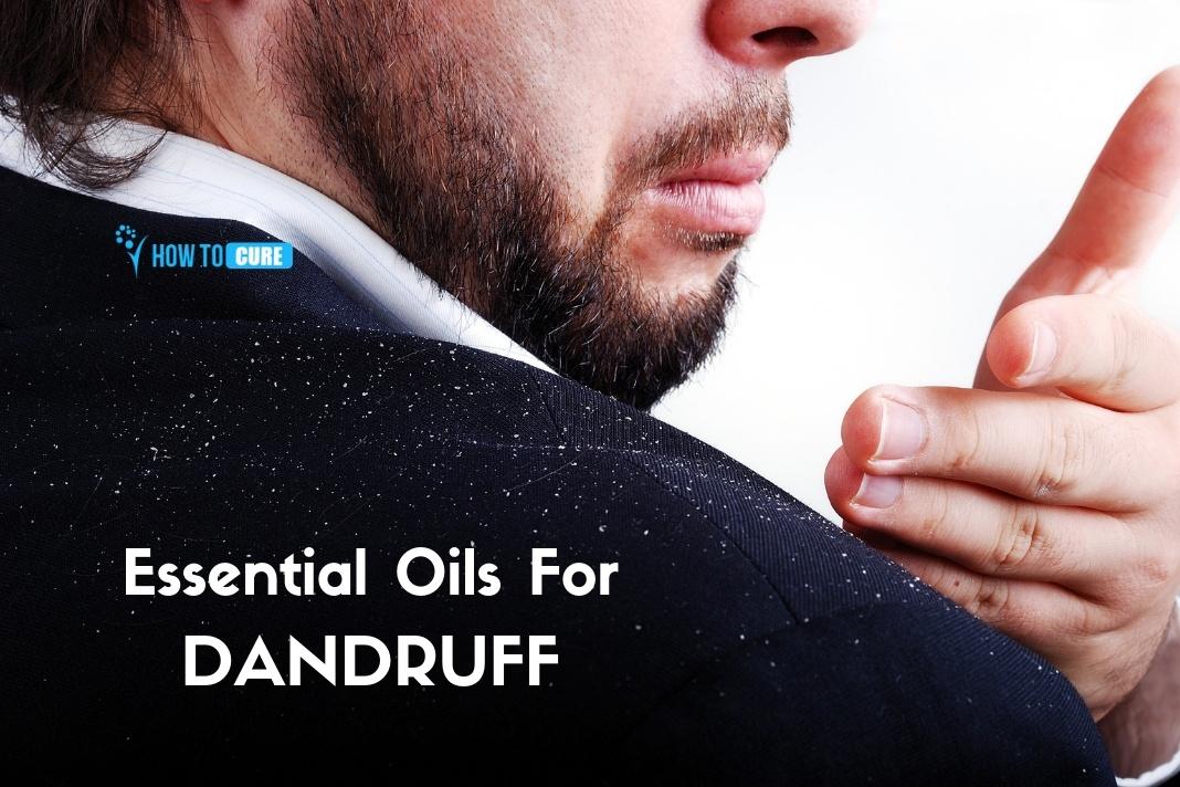 essential oils for dandruff
