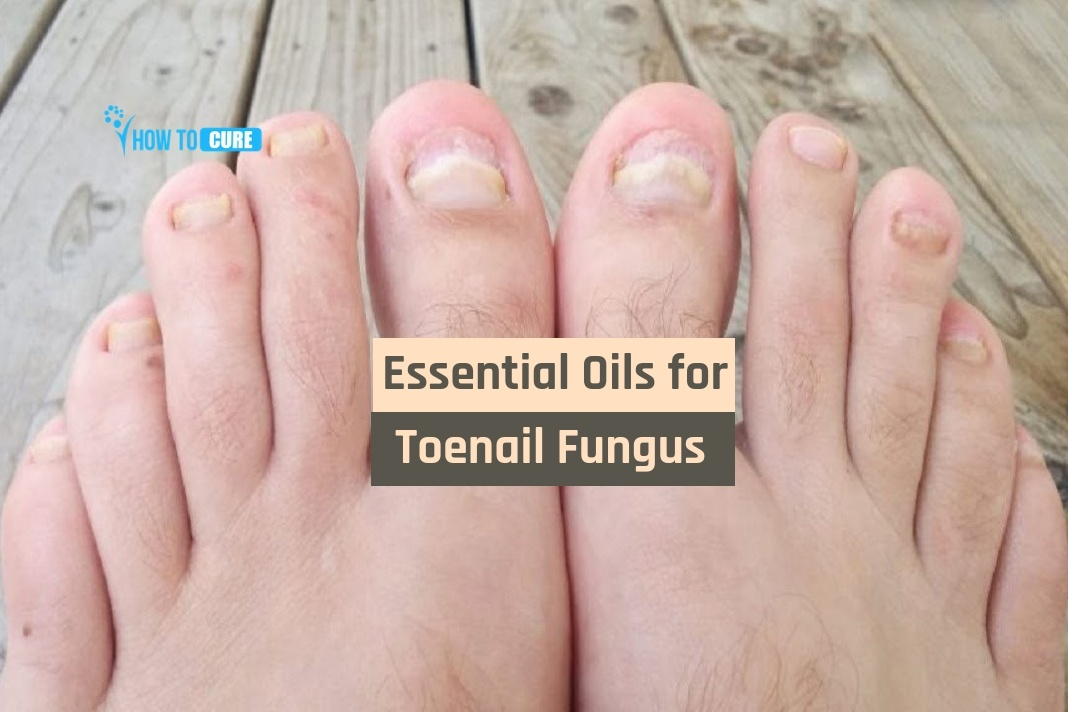 8 Scientifically Proven Essential Oils for Toenail Fungus Cure
