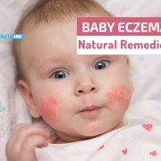 baby eczema natural remedies