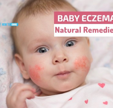 baby eczema natural remedies