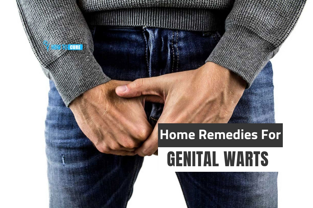 home remedies for genital warts