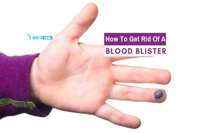 how to get rid of a blood blister