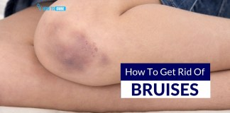 how to get rid of bruises