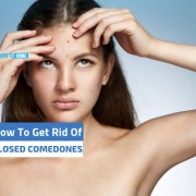 how to get rid of closed comedones