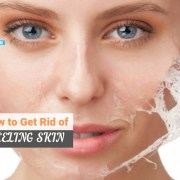 how to get rid of peeling skin