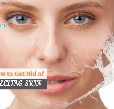how to get rid of peeling skin