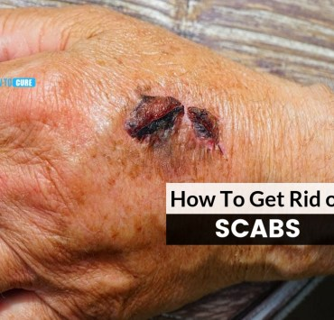 how to get rid of scabs