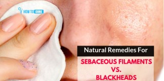 natural remedies for sebaceous filaments vs. blackheads