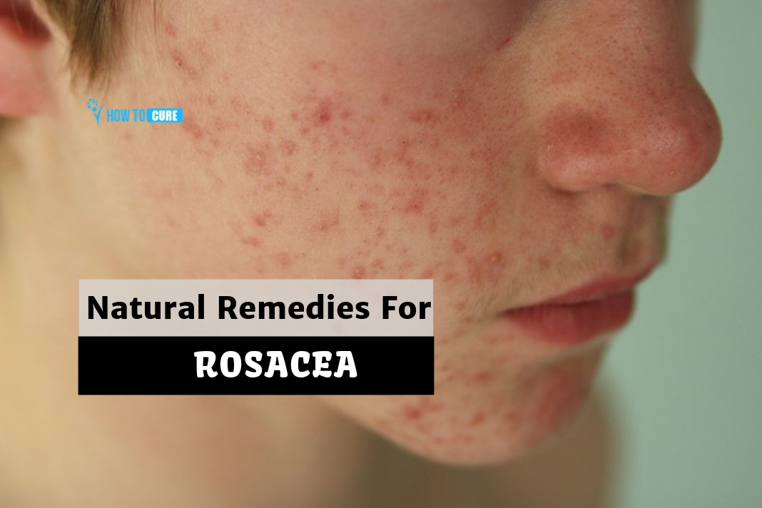 natural remedies for rosacea