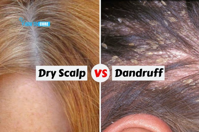 remedies for dandruff and dry scalp