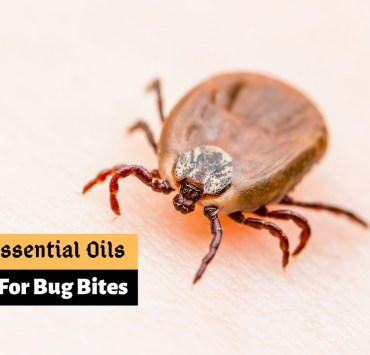 Bug bites