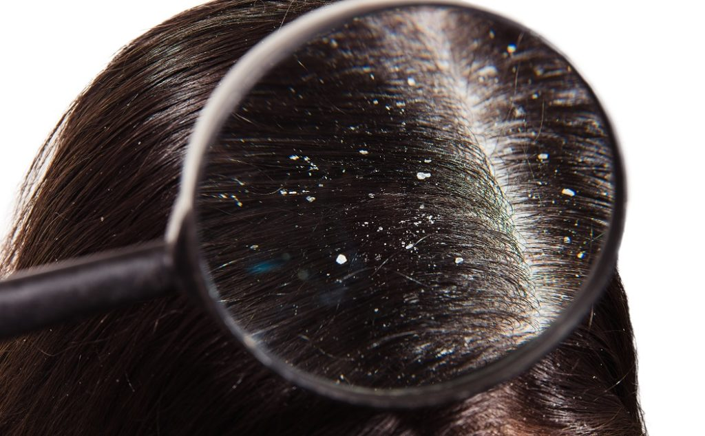 astragalus benefits dandruff and dryness of scalp
