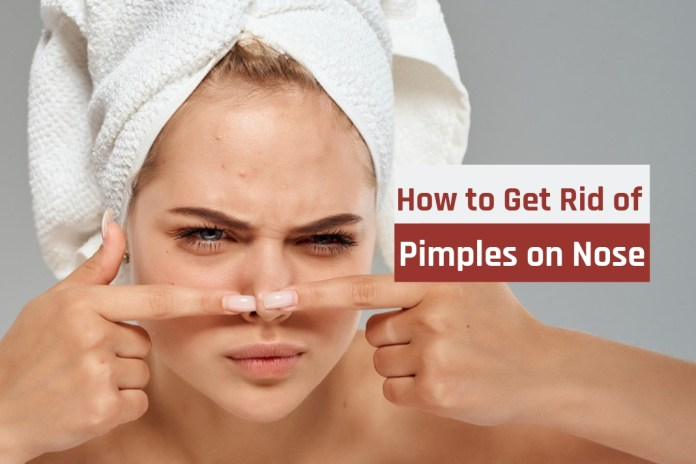 how to get rid of pimple on nose